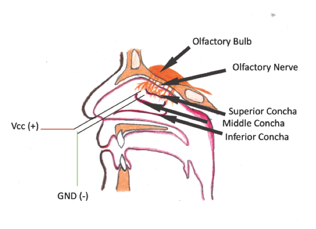 Figure 3: The inner part of the nasal conchae and the placement of the electrodes.